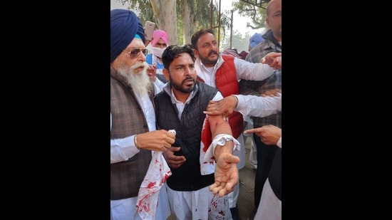A Shiromani Akali Dal activist showing injuries suffered after the clash with Congress supporters at the Jalalabad tehsil complex on Tuesday. (Sanjeev Kumar/HT)