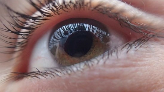Past studies have shown the condition to continue to worsen even after eye pressure has been controlled.(Pixabay)
