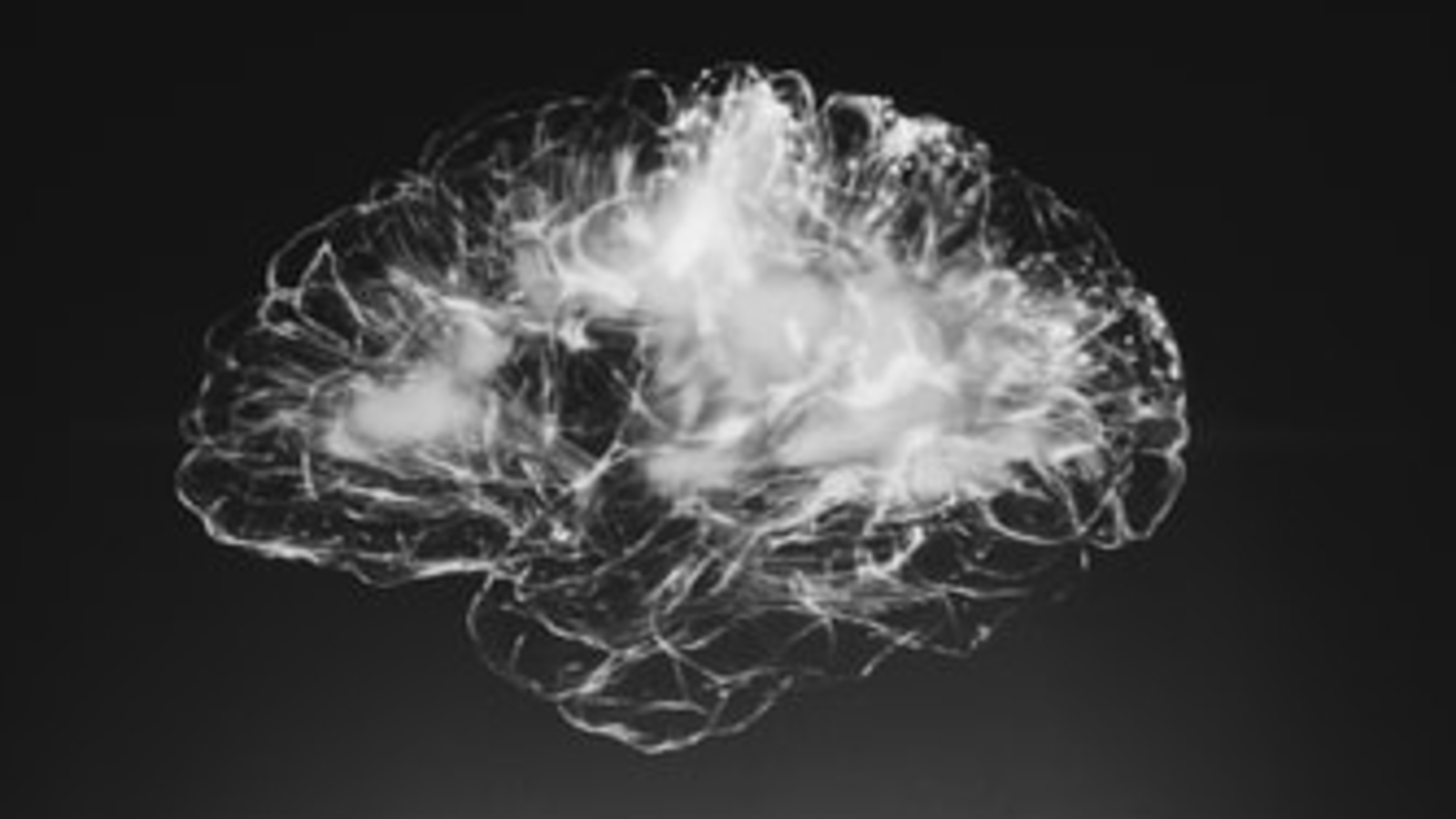 Here's how traumatic brain injuries can increase the risk of stroke by up to 5 years