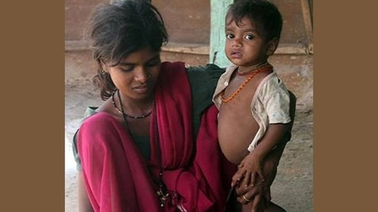 In a communication to the Ministry of Women & Child Development, CMAM Association of India has offered to support and implement any suitable feeding protocols to be laid down by the Government of India.