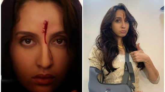 Nora Fatehi was injured while shooting for Bhuj: The Pride of India.