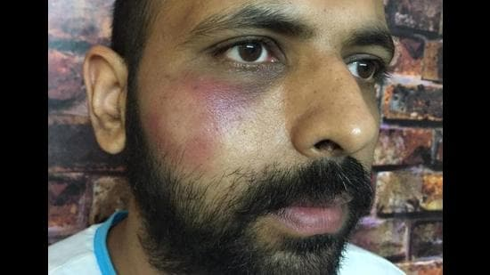 Head constable Varun Kapoor showing his bruised face.