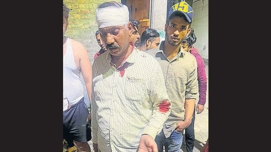 The Ludhiana police are scanning through CCTV footage to identify the three men who assaulted and robbed the elderly mill owner. (HT Photo)