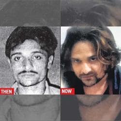 Left: Photo of Kunal Maheshwari before surgery, clicked in 2010. Right: His recent coloured photo.