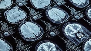 The scans could give an insight into variations in cognitive ability and personality traits of people.(Shutterstock)