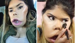Beauty blogger Marimar Quiroa suffers from cystic hygroma - a rare congenital condition. (Marimar Quiroa/ Youtube, Instagram)