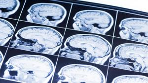 Can this really help with brain injuries and strokes?(Shutterstock)