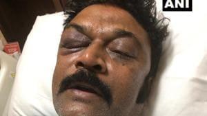 Karnataka Congress suspends MLA accused of assault at party meet, police file FIR