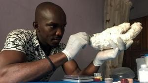 Nigerian artist and former movie special effects expert makes dark skin prosthetics to boost patients' confidence