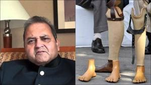 Jaipur Foot USA announces free artificial limb fitment camp in Gujarat on PM Modi's birthday
