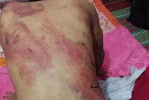 Manipur man assaulted by employers, Northeast members meet Delhi...