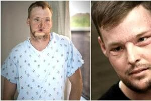 US: 50-hour face transplant gives a new face to a wounded man