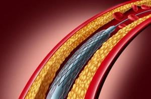 Hospitals must display price list of stents, says NPPA