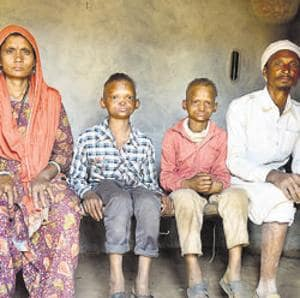 The Khan children, Ashfaq and Mushtaq, who are suffering from HED, have been ridiculed, pelted with stones and have even had dogs set on them because they look different, in their village in Rampur.