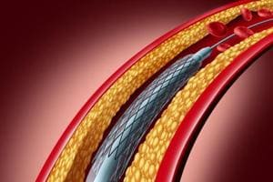 After curbing stent prices, will govt follow its heart to cap other...