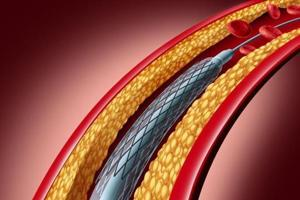 Maharashtra: Stents capped, services uncapped