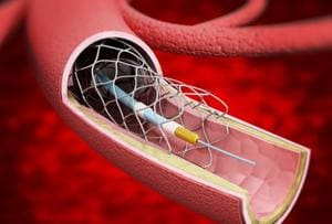 Cap on stent prices will make angioplasty procedure affordable, says...