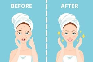 Acne tips: You can't always avoid them, but you can change how you...