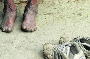 Leprosy, also known as Hansen's disease, is a chronic infectious, but curable bacterial disease, that mainly affects the skin and the eyes. Leprosy is known to occur at all ages ranging from early infancy to very old age.