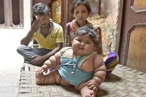 Double the normal weight, 9-month-old Chahat awaits treatment in...