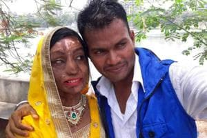 Acid attack, 17 surgeries later, I found love, 26-year-old from Mumbai...