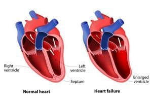 Scientists discover receptor protein linked to chronic heart failure