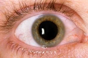 Youngsters with diabetes more at risk of eye disease