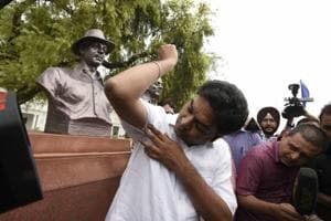 AAP MLA Kapil Mishra showing his bruises after being thrown out of the Delhi Assembly on Wednesday.