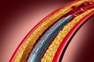 After the National Pharmaceutical Pricing Authority capped the prices of cardiac stents,  authorities like the FDA, the legal metrology department and non-government organisations have demanded a price cap on other medical devices too.
