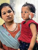 The three-year-old whose ears were chopped off.