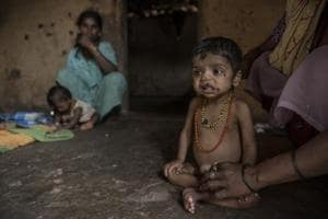 81% of money meant for malnourished children remains unused in...