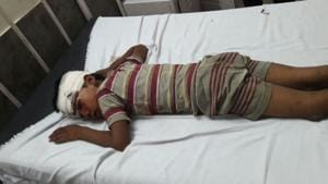 Injured Sham Kumar, 8, undergoing treatment at a Nabha hospital on Sunday.