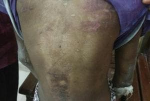 The 14-year-old girl had bruises on her body. Police alleged that she had been beaten up by her employer.