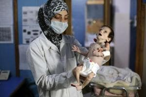 This is the price of war: A malnourished Syrian baby, who died of...