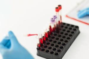 Now, a blood test that can detect disease in its earliest stages