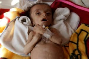 Saudi blockade could kill thousands in Yemen famine: All about the...