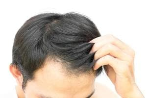 Early baldness, greying of hair ups risk of heart disease in men