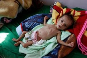 More than 8.4 million people in Yemen 'a step away from famine', warns...