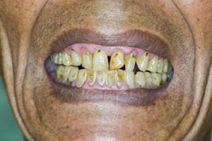 Floss and brush! Poor oral health ups frailty risk in older adults