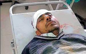 The accused Naresh Dhankar at a hospital. He is said to be mentally unstable and has been taken into custody.