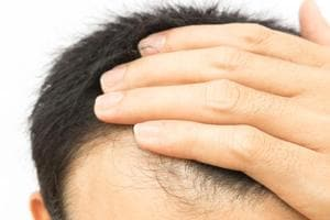 Hairy skin from mouse stem cells may hold a cure for baldness in...