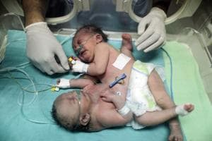 Conjoined Gaza twins separated in 'successful' surgery in Riyadh