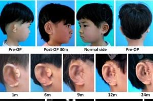 Five Chinese kids get new ears grown in lab with their own cells