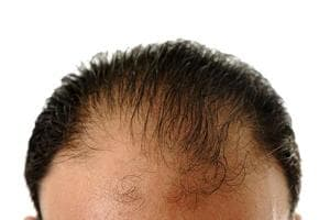 85 people jailed in China for selling fake cure for baldness
