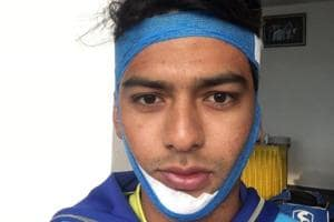 Unmukt Chand does a Anil Kumble, slams ton with broken jaw in Vijay...