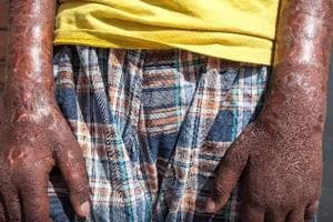 All you need to know about leprosy: Different types, diagnosis and...
