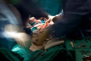 World's largest brain tumour, weighing nearly 2kgs, removed at Mumbai...