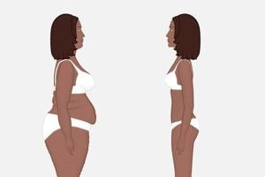 According to a new study done by the Penn State, although abdominoplasty is classified as a cosmetic procedure, it also improves two of the most common physical complaints experienced by women after labor and delivery.