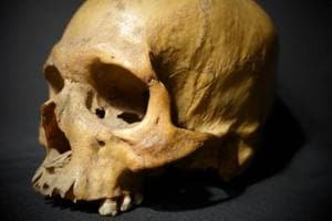 Photo of the skull of Alum Bheg, an Indian soldier blown to pieces by the British during the 1857 uprising.
