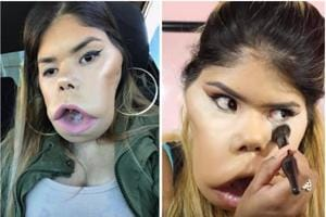 This beauty vlogger with facial tumour is a YouTube star with millions...